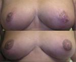 Cicatrices de nécrose aréolaires