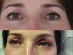 Maquillage avant et dermopigmentation après